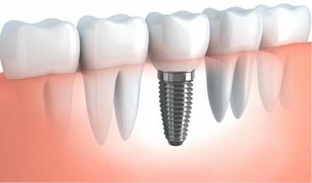 Dental Implant El Paso, TX